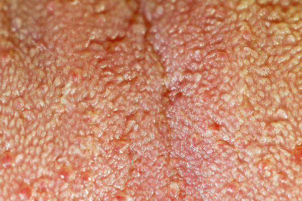 The human tongue viewed upclose